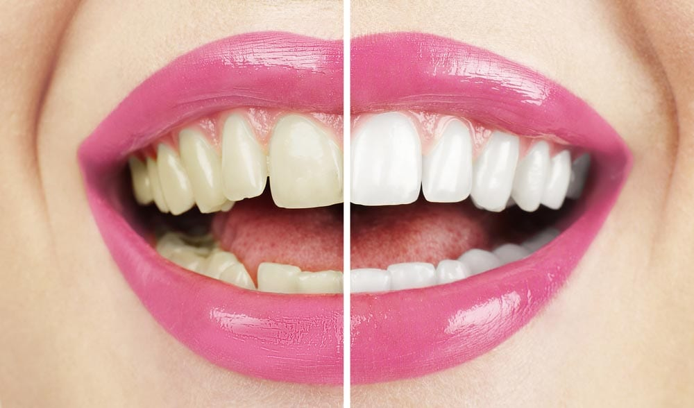 What Are the Benefits of Professional Teeth Whitening?