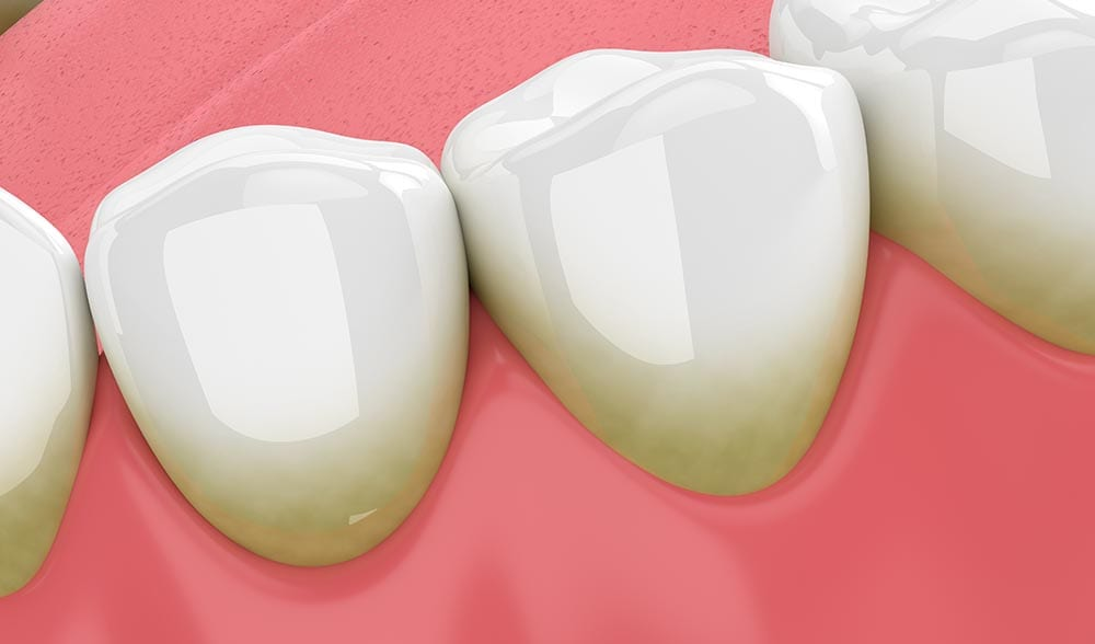 What Can a Dentist Do To Treat Gingivitis?