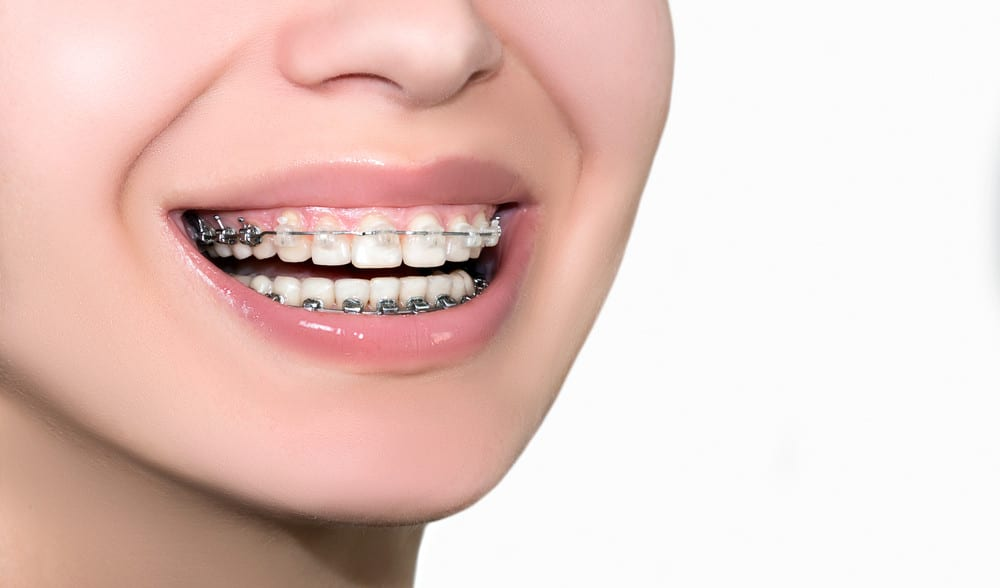 How To Know If You Need To Tighten Your Braces - MyOrthodontist